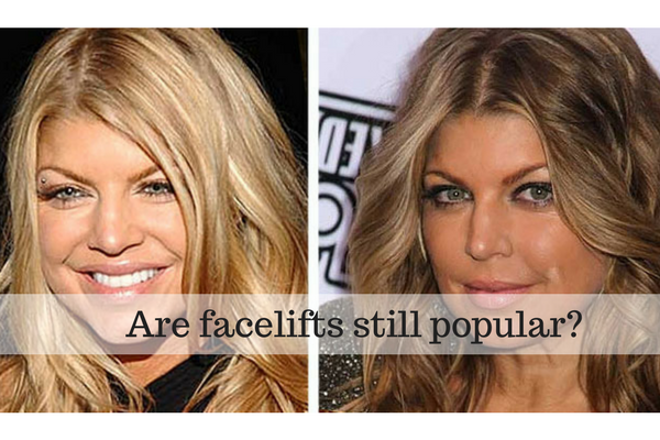 Are facelift Surgery still popular